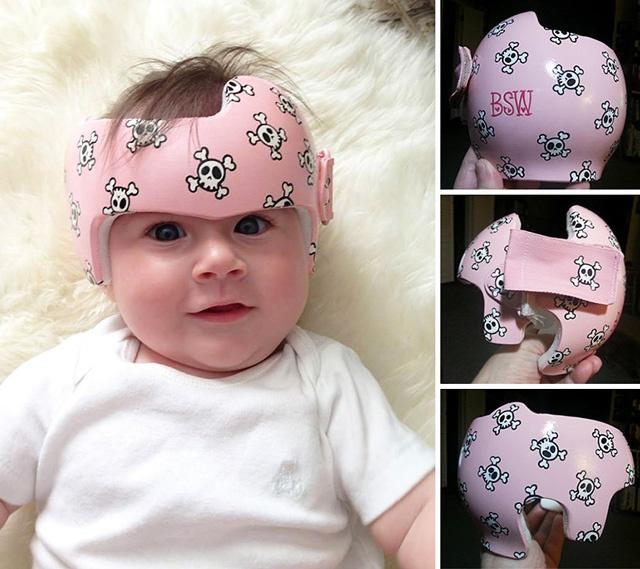 правильная форма черепа у младенца фото