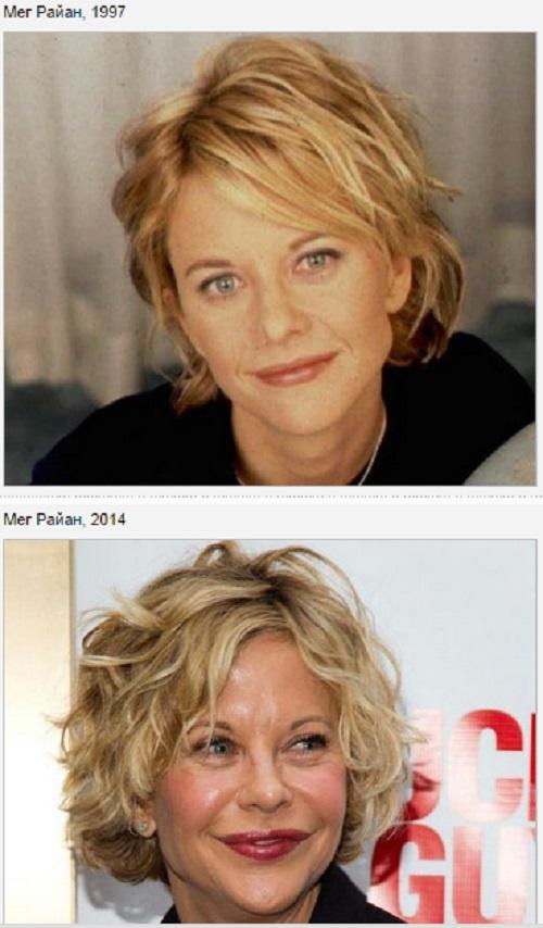 фото знаменитостей после пластических операций
