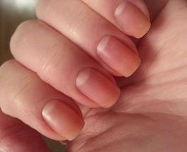Секреты красоты : что делать когда ногти слабые и слоятся
