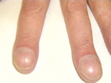 Ногти стали круглыми