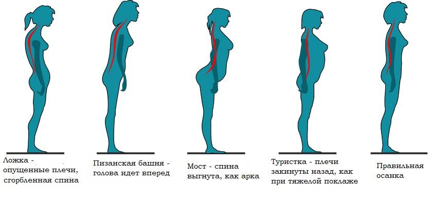 Какие упражнения надо делать чтобы избавиться от сколиоза