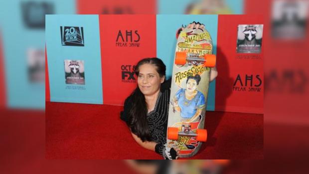 Артистка Роуз Сиггинс скончалась после безуспешной операции