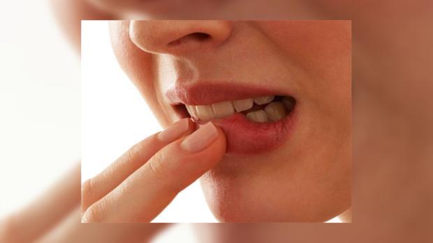 Пародонтоз у женщин связан с раком молочной железы