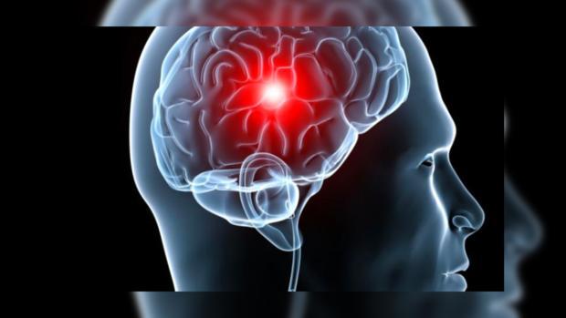 Установлена причина развития рака мозга— Научный прорыв