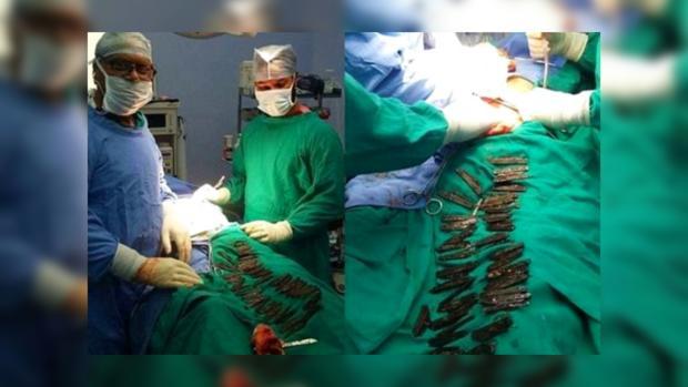 Хирурги достали изжелудка мужчины 40 ножей