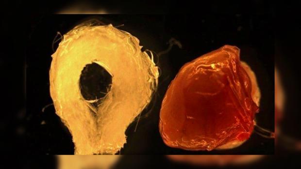 Стволовые клетки помогли сделать искусственную печень— Чудо изпробирки