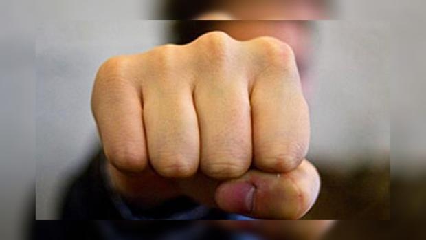 ВКиеве безжалостно избили экс-звезду Динамо
