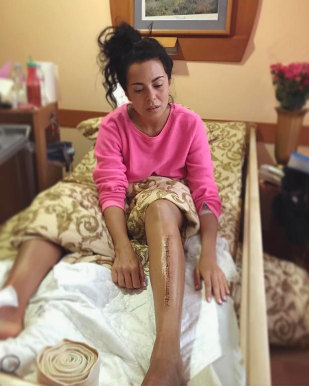 Настя Каменских показала страшный шрам после операции наноге