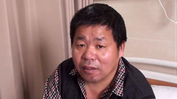 В КНР хирурги пришили мужчине отрезанную руку кноге испасли конечность