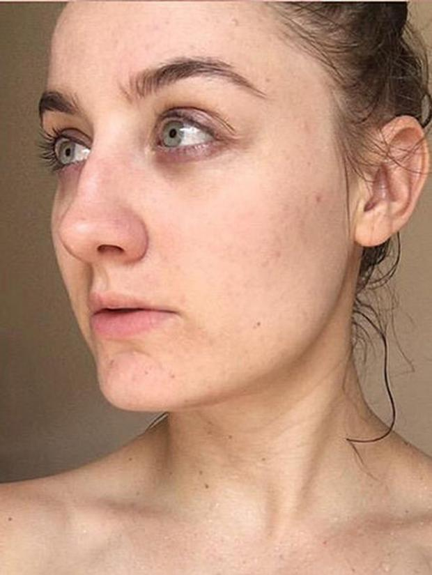 Не умываясь целый год блогер избавилась от проблем с кожей
