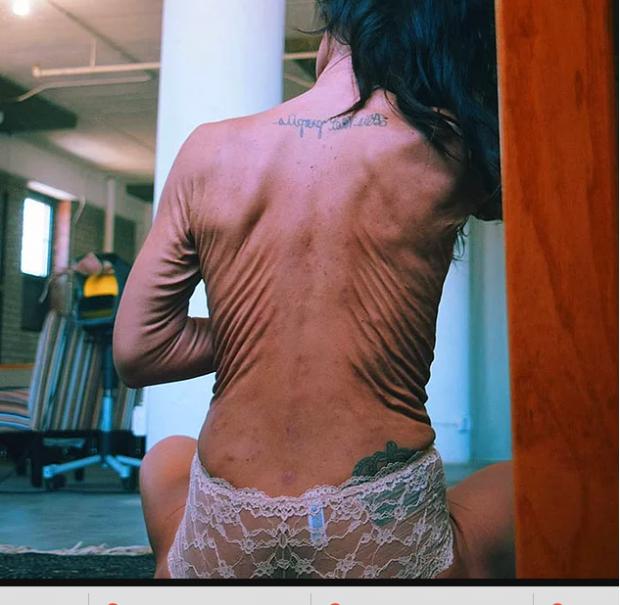 Новая звезда Интернета: 26-летняя девушка с телом старушки