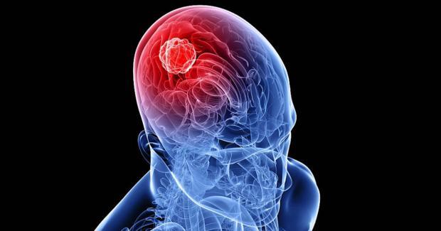 Ученые возлагают большие надежды навирус Зика— Лечение рака мозга