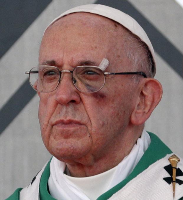 Папа Римский получил травму вовремя визита вКолумбию