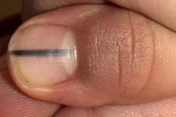 Заболевания кожи фото Ваш домашний дерматолог 68