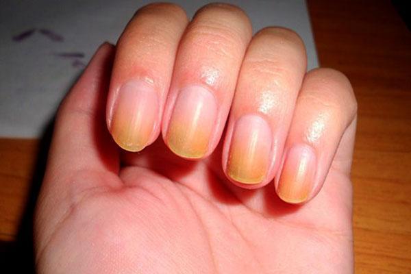 От чего желтеют под ногтями