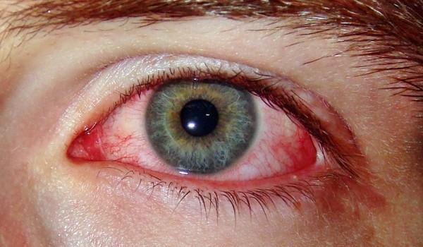 Узнать болезнь по глазам: ТОП-7 недугов и их опасные признаки ...
