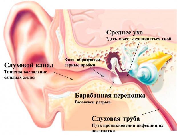 Заложило уши - почему: лечение