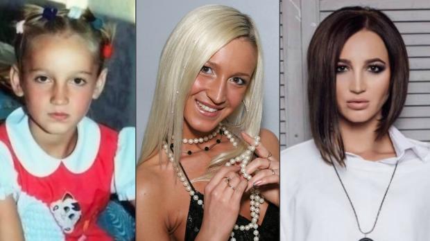 Ольга Бузова и пластические операции: певица рассказала как оценивает свое тело и внешность