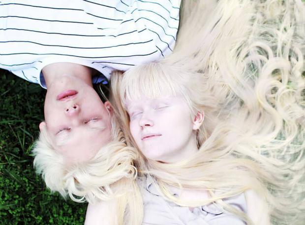 Международный день распространения информации про альбинизм: история и значение праздника