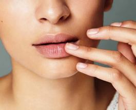Лечение герпеса народными средствами: что поможет убрать простуду на губах