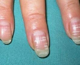 Белые пятна на ногтях: причины их появления и виды