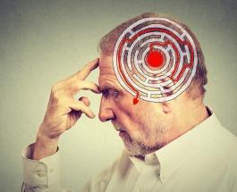 Малоизвестные факты о болезни Альцгеймера: о чем следует знать каждому
