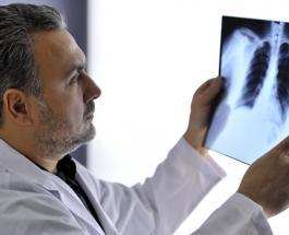 Как выглядят лёгкие пациента, зараженного Covid-19, врач показал на 3D-видео