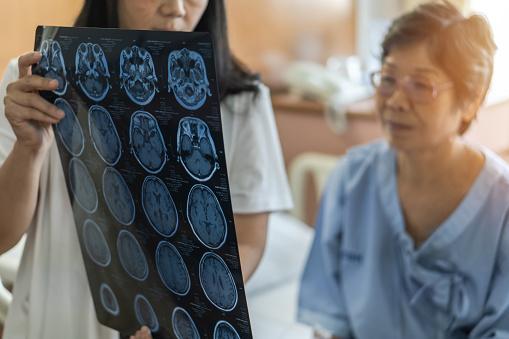 врач показывает пациентке результаты обследований головного мозга
