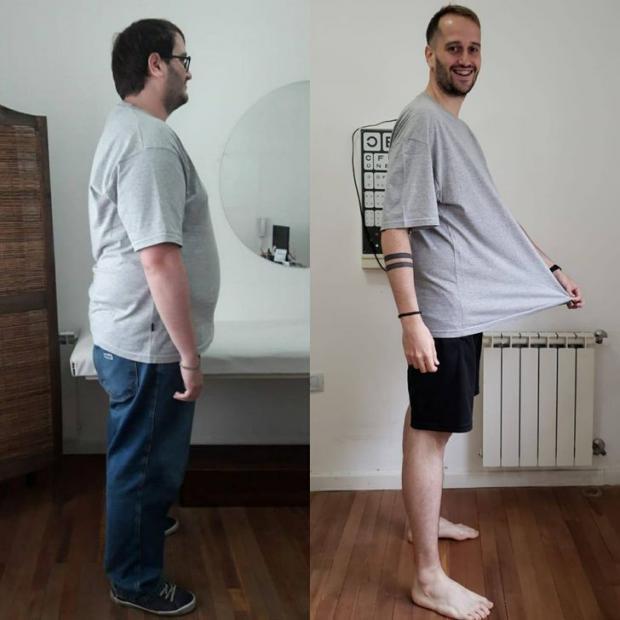 27-летний агрентинец Франциско Сола похудел на 57 килограммов