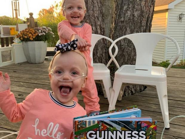 самые недоношенные в мире близнецы