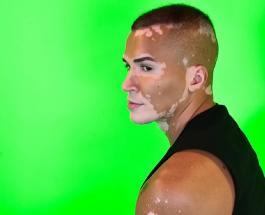 Модель скрывающий витилиго 10 лет решился показать лицо миру: 10 фото Роджера Монте