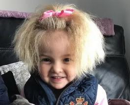 Девочку с синдромом нерасчесываемых волос сравнивают с Эйнштейном и домовенком: фото